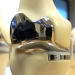 3D-gedrucktes Kniegelenk, das wie ein Herrenanzug perfekt sitzt