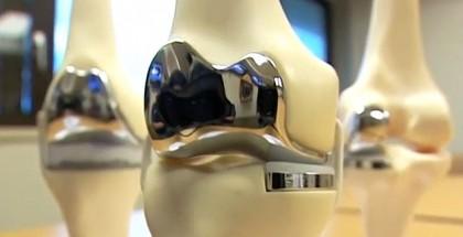 Kniegelenk-3D-Druck