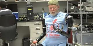 Gedankengesteuerte Armprothesen: Sensationelle Fortschritte