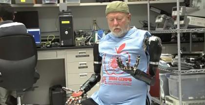 gedankengesteuerte-armprothese-video-cover